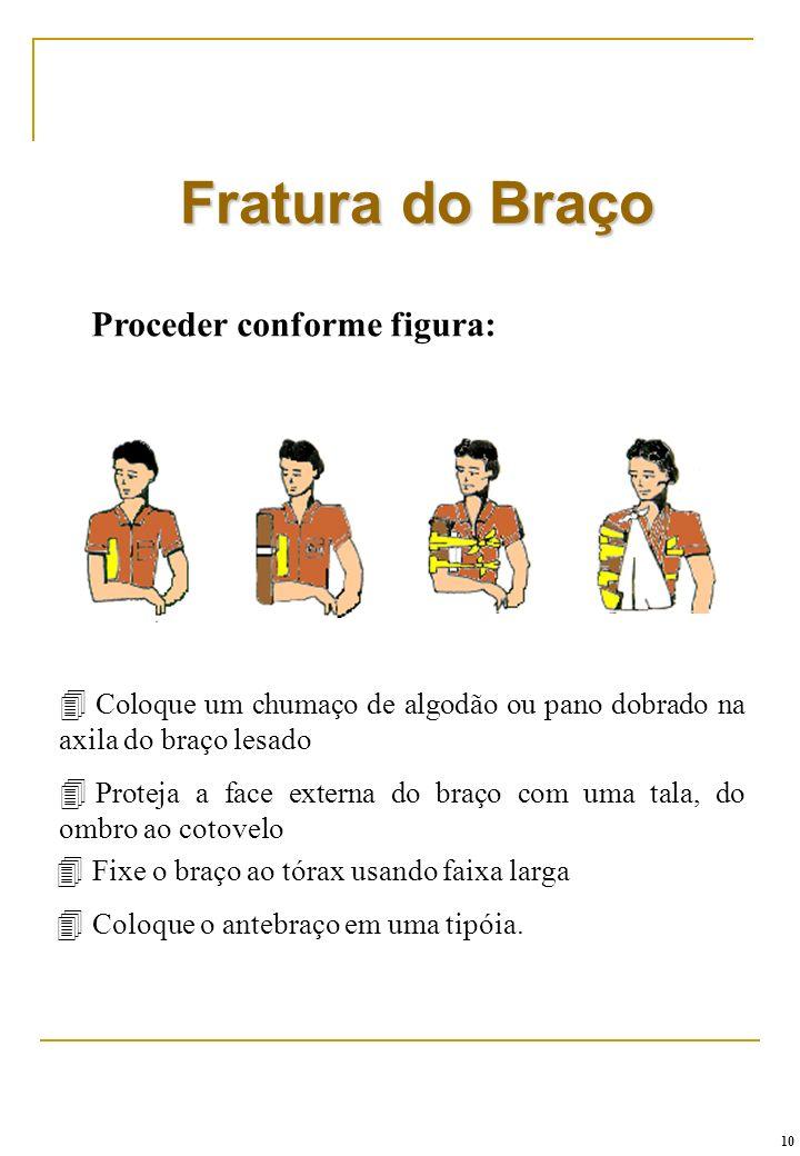 Fratura do Braço Proceder conforme figura: