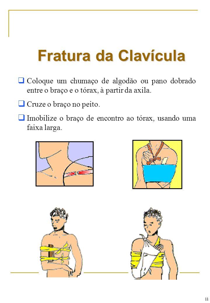 Fratura da ClavículaColoque um chumaço de algodão ou pano dobrado entre o braço e o tórax, à partir da axila.