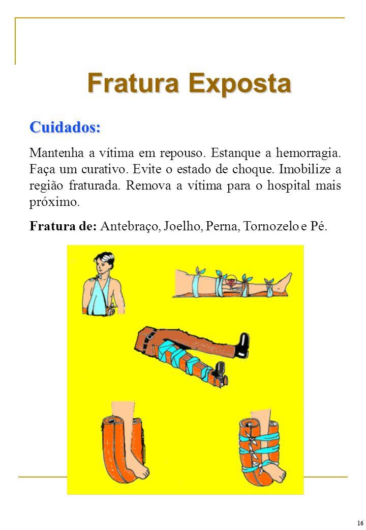 Fratura Exposta Cuidados: