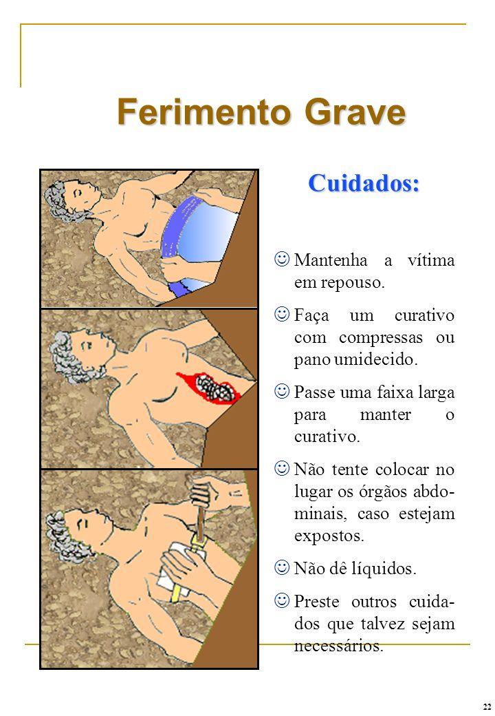 Ferimento Grave Cuidados: Mantenha a vítima em repouso.