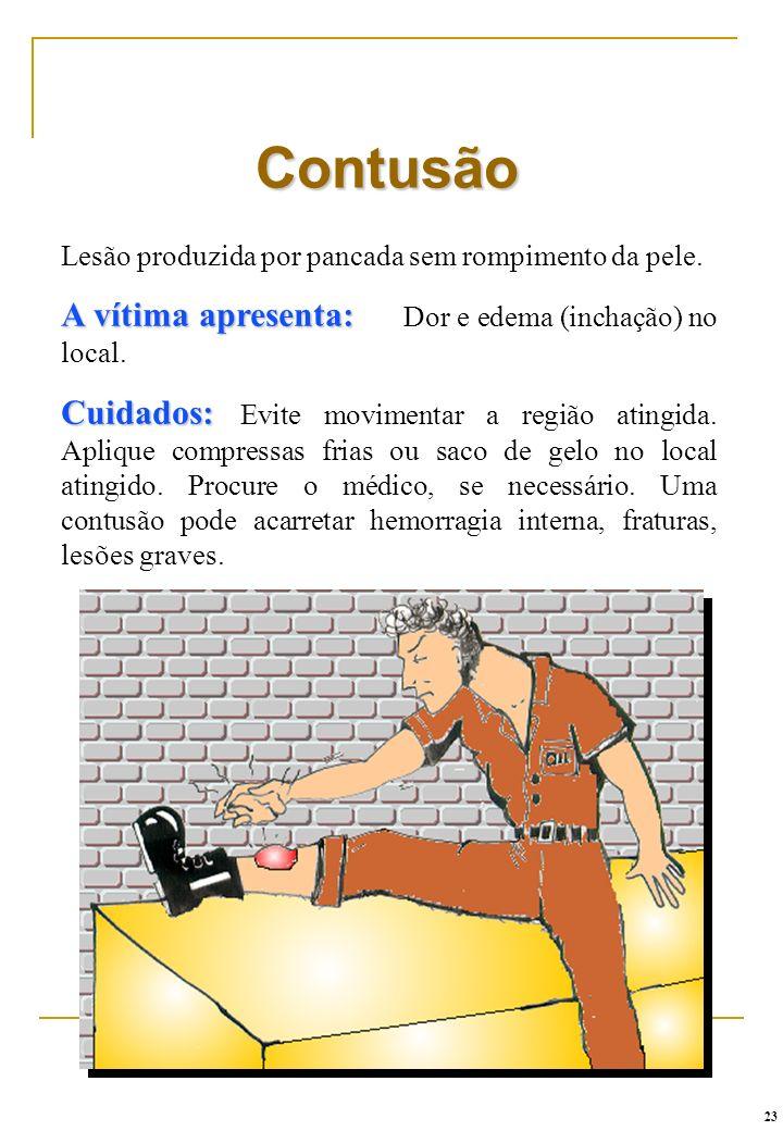 Contusão A vítima apresenta: Dor e edema (inchação) no local.