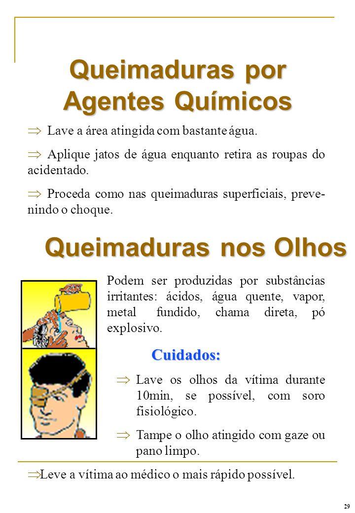 Queimaduras por Agentes Químicos