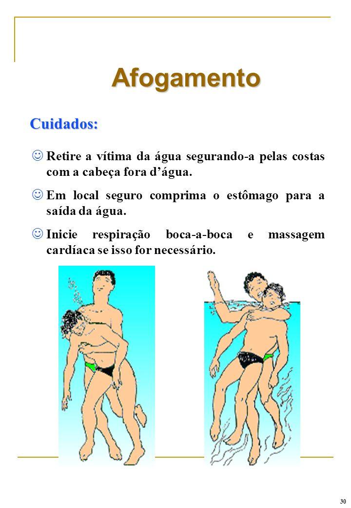 AfogamentoCuidados: Retire a vítima da água segurando-a pelas costas com a cabeça fora d'água.