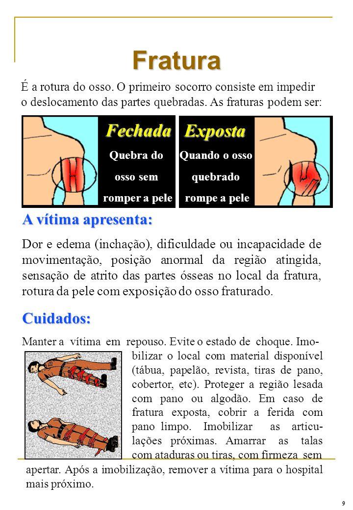 Fratura Fechada Exposta A vítima apresenta: Cuidados: