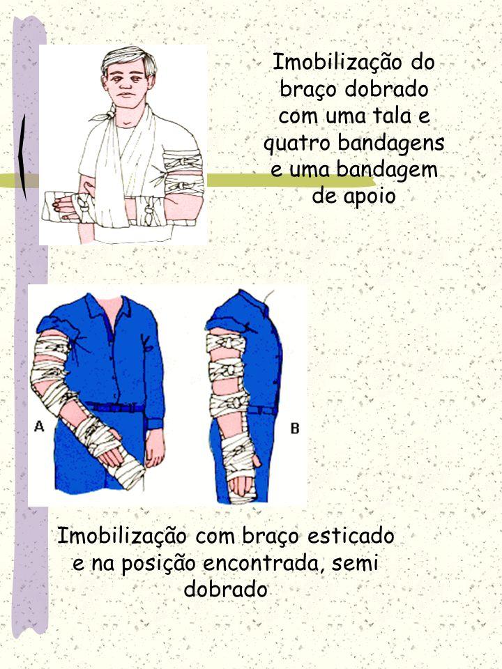 Imobilização com braço esticado e na posição encontrada, semi dobrado