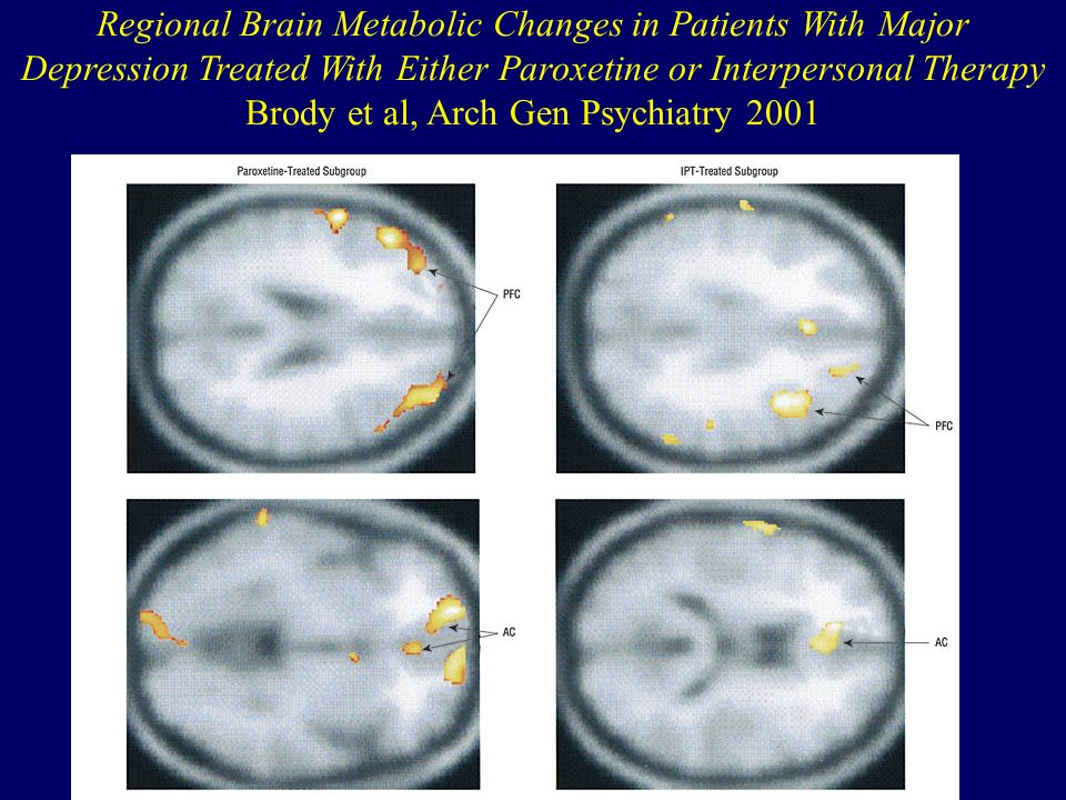 Regional Brain Metabolic Changes in Patients With Major Depression Treated With Either Paroxetine or Interpersonal Therapy Brody et al, Arch Gen Psychiatry 2001