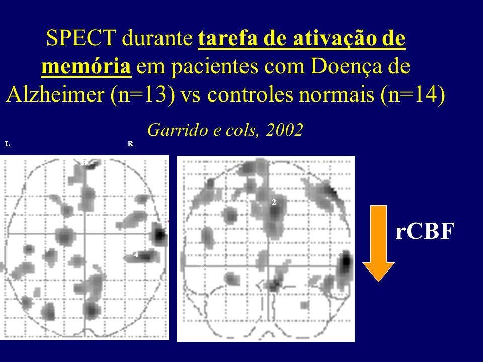 SPECT durante tarefa de ativação de memória em pacientes com Doença de Alzheimer (n=13) vs controles normais (n=14) Garrido e cols, 2002