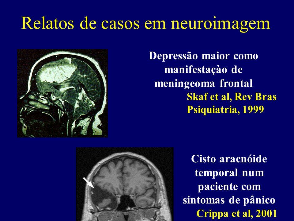 Relatos de casos em neuroimagem