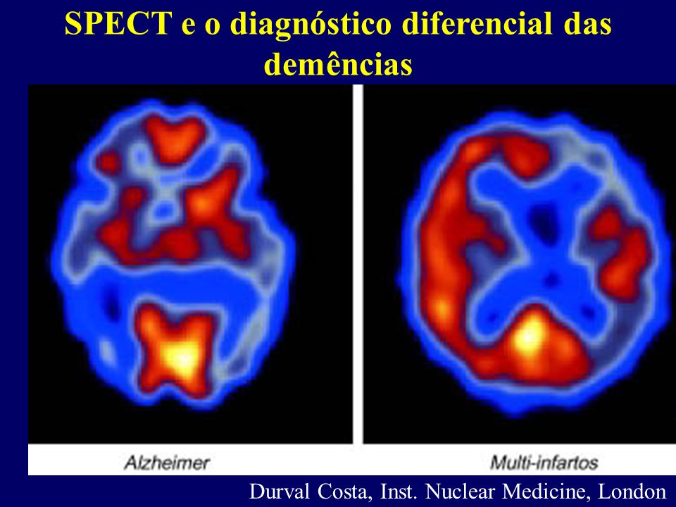 SPECT e o diagnóstico diferencial das demências