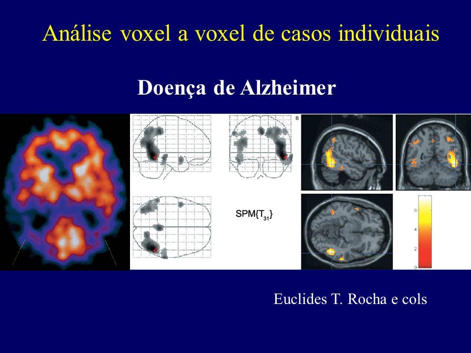 Análise voxel a voxel de casos individuais