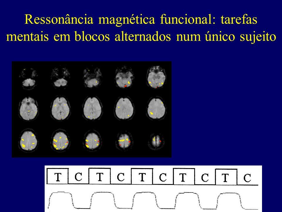 Ressonância magnética funcional: tarefas mentais em blocos alternados num único sujeito
