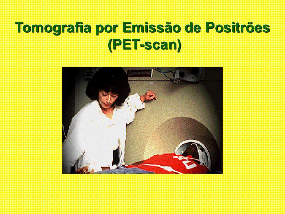 Tomografia por Emissão de Positrões