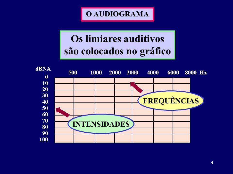 Os limiares auditivos são colocados no gráfico