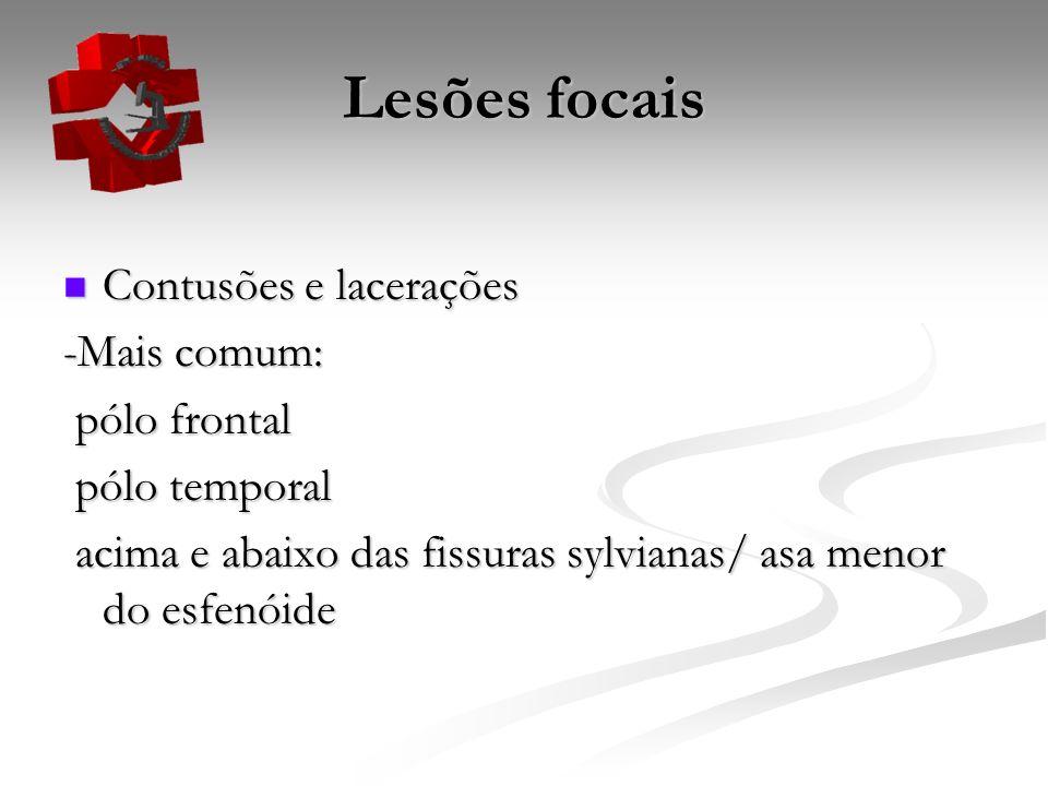 Lesões focais Contusões e lacerações -Mais comum: pólo frontal