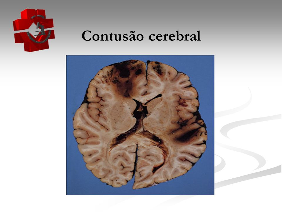Contusão cerebral