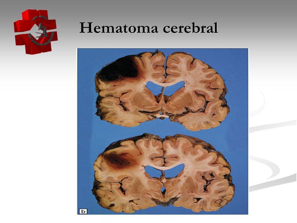 Hematoma cerebral