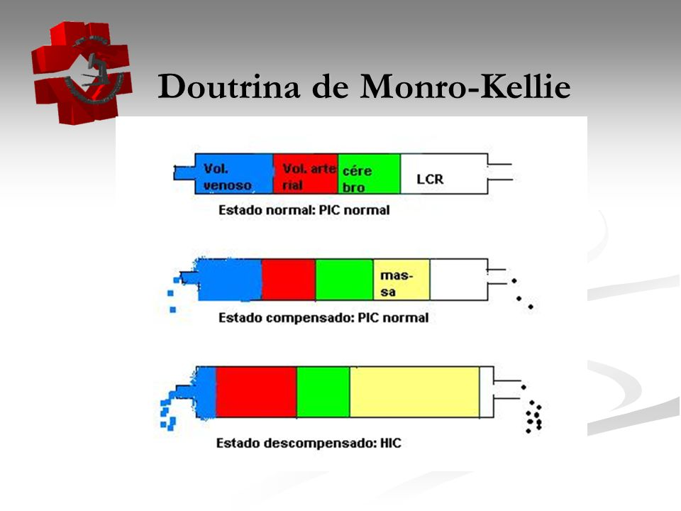 Doutrina de Monro-Kellie