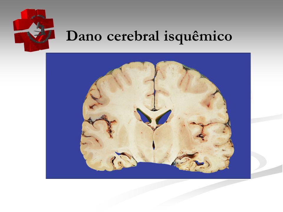 Dano cerebral isquêmico