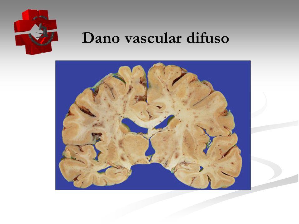 Dano vascular difuso