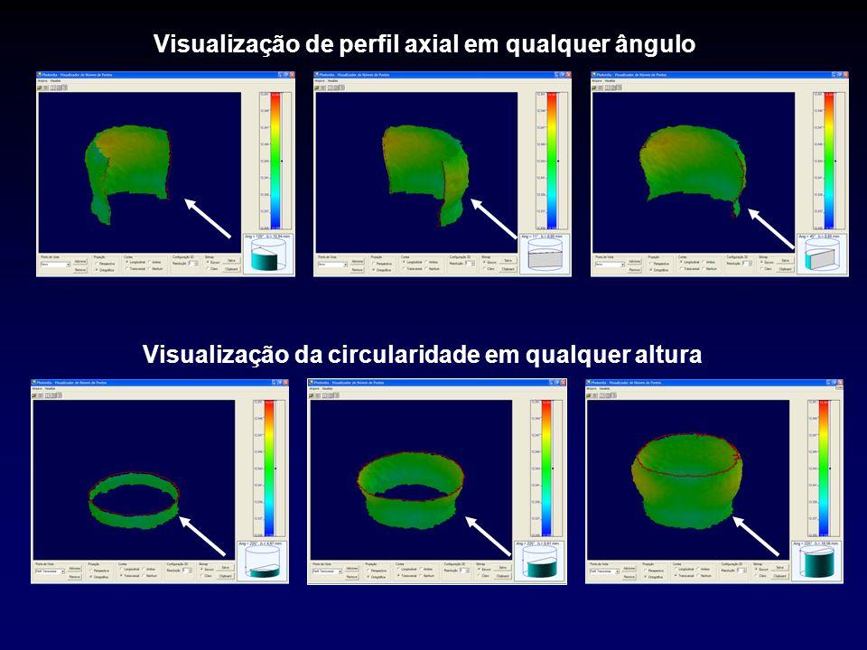 Visualização de perfil axial em qualquer ângulo