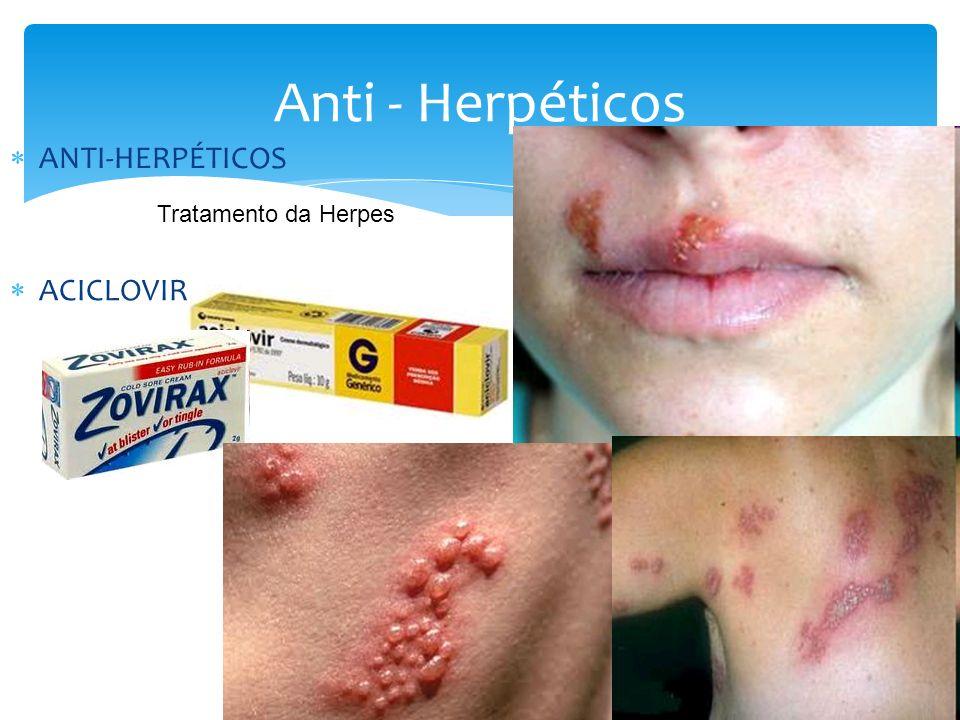 Anti - Herpéticos ANTI-HERPÉTICOS Tratamento da Herpes ACICLOVIR