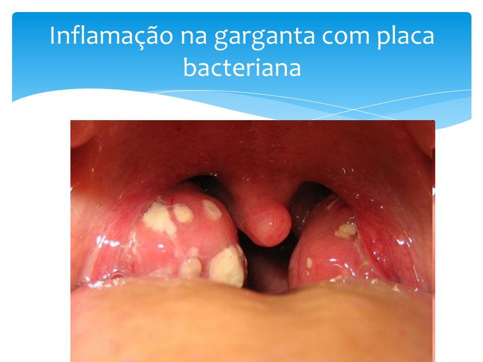 Inflamação na garganta com placa bacteriana