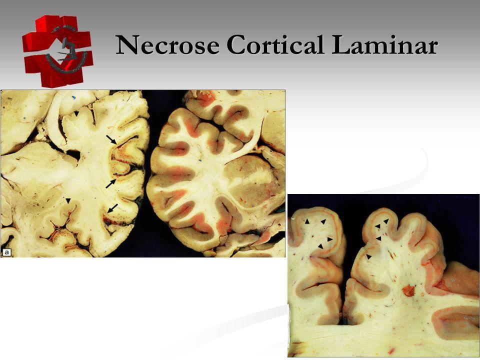 Necrose Cortical Laminar