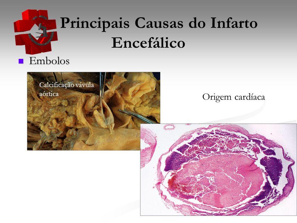 Principais Causas do Infarto Encefálico