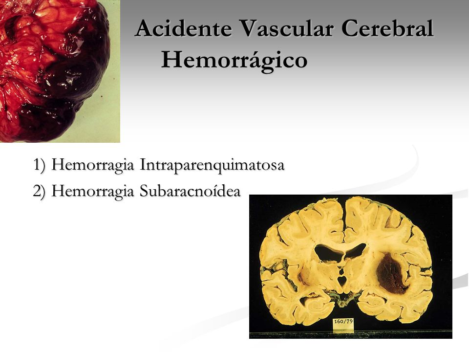 Acidente Vascular Cerebral Hemorrágico