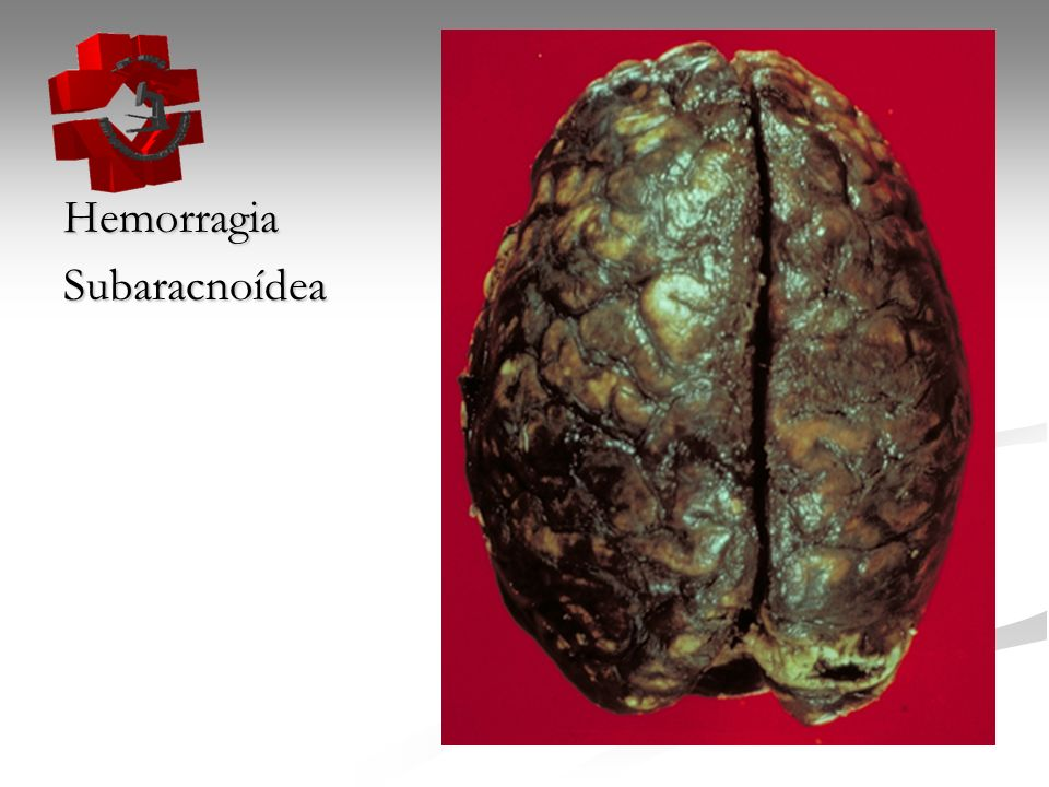 Hemorragia Subaracnoídea