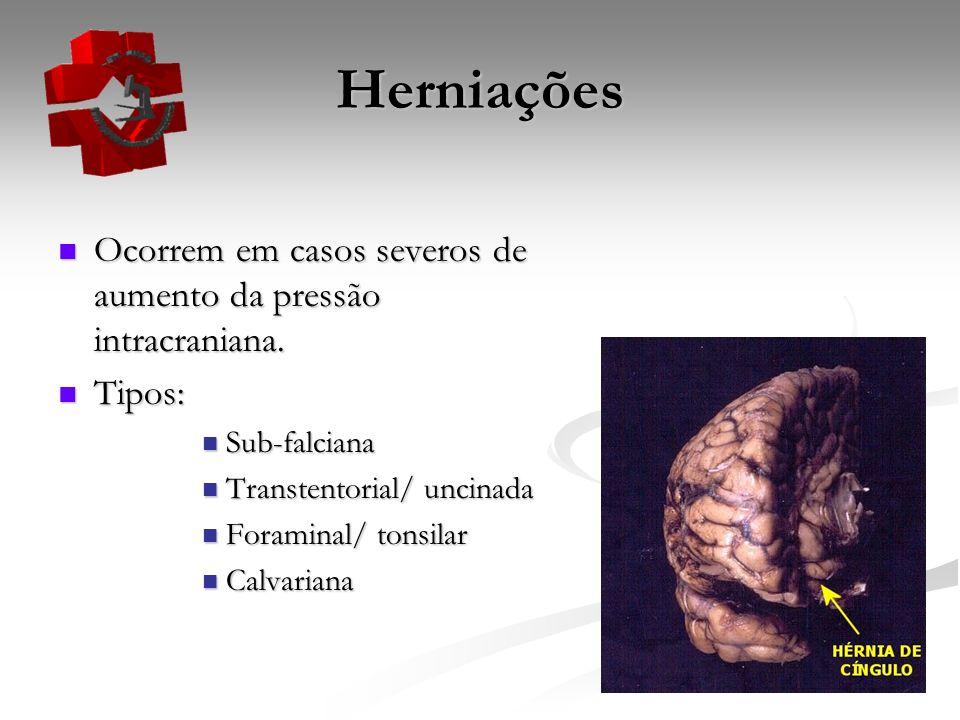 Herniações Ocorrem em casos severos de aumento da pressão intracraniana. Tipos: Sub-falciana. Transtentorial/ uncinada.
