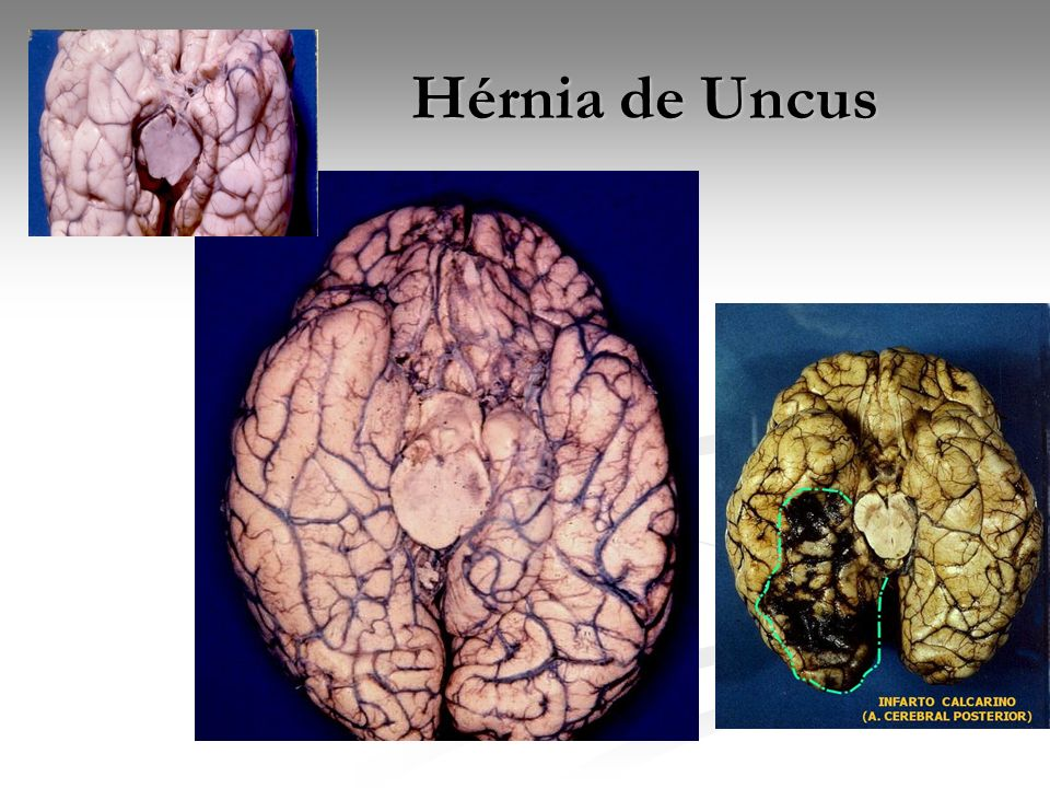 Hérnia de Uncus