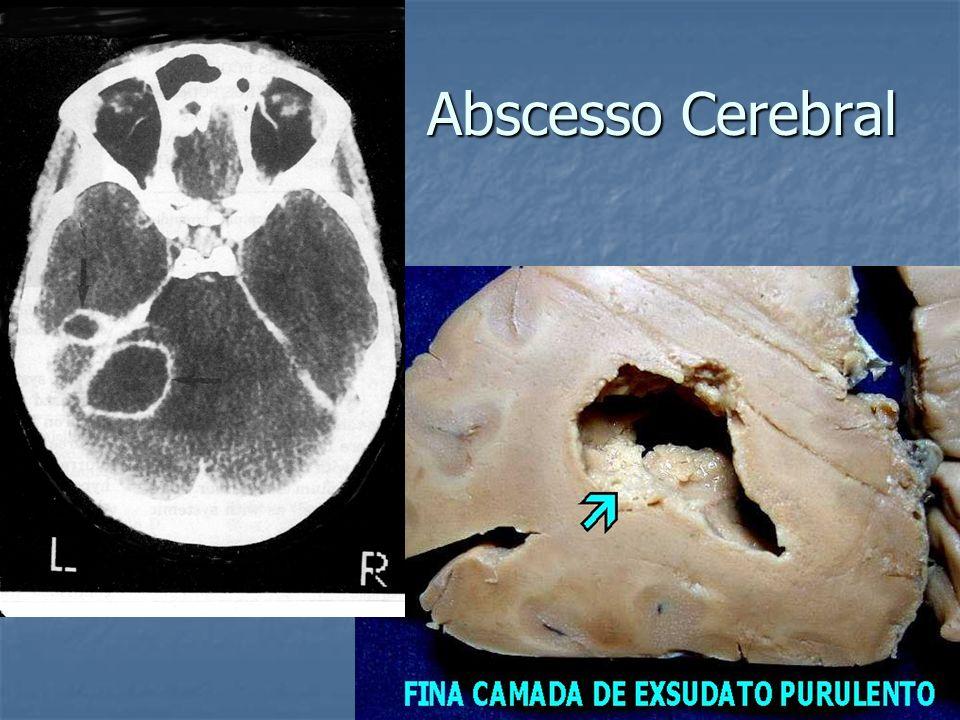 Abscesso Cerebral