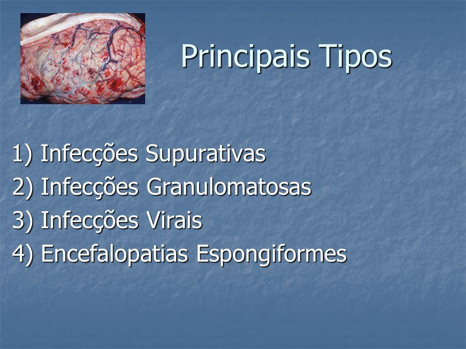 Principais Tipos 2) Infecções Granulomatosas 3) Infecções Virais