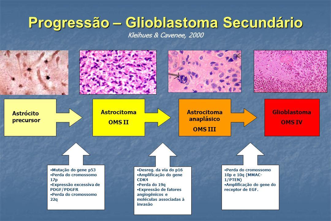 Progressão – Glioblastoma Secundário Kleihues & Cavenee, 2000