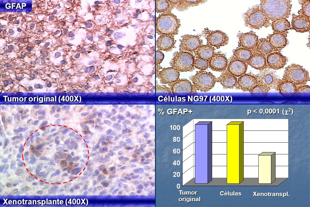 GFAP Tumor original (400X) Células NG97 (400X) % GFAP+