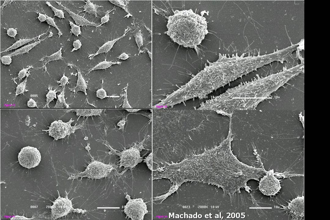 Em estudo recente, realizado por Machado, no qual eu tive a oportunidade de participar, as células NG97 foram observadas à microscopia eletrônica de varredura, em diferentes momentos, sendo observado que as células redondas são as primeiras a aparecer na cultura, seguidas pelas células dendríticas e pelas células fusiformes.