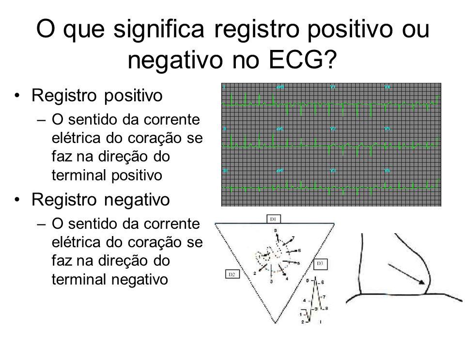 O que significa registro positivo ou negativo no ECG