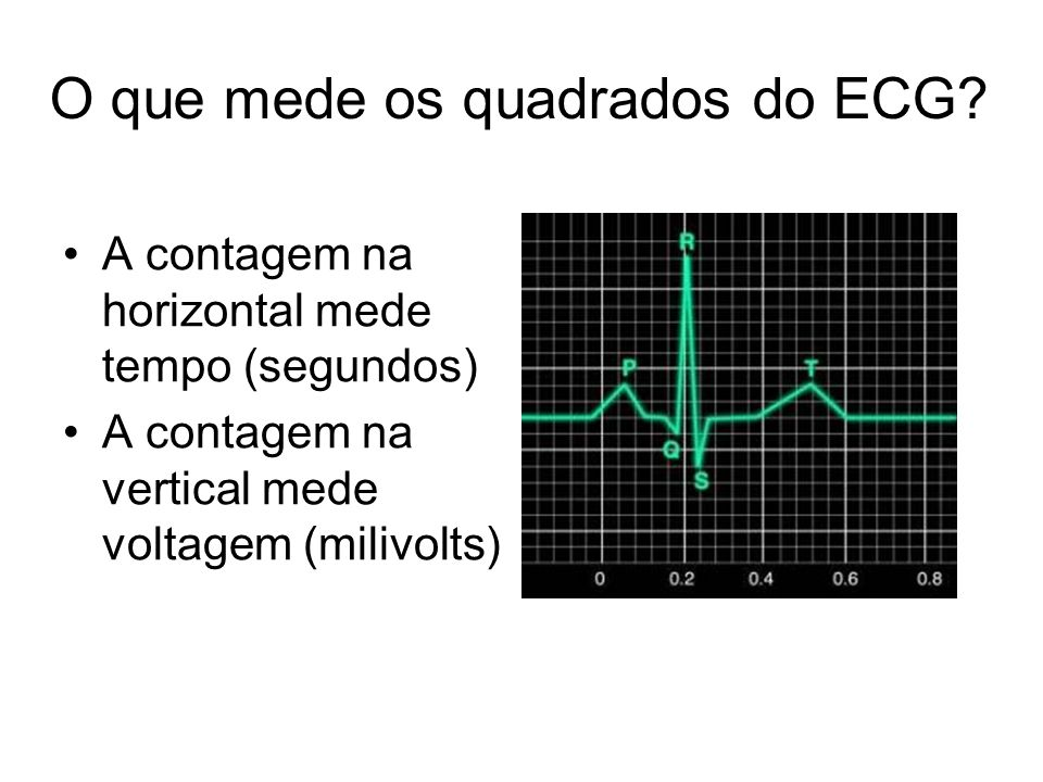 O que mede os quadrados do ECG