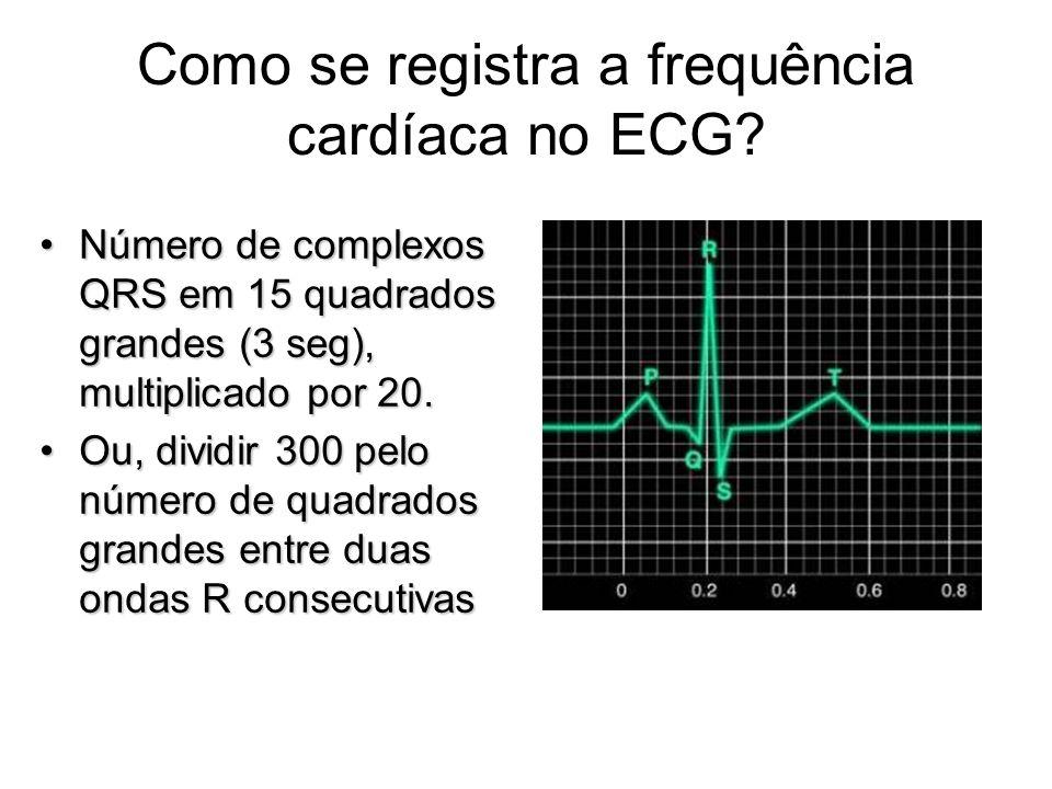 Como se registra a frequência cardíaca no ECG