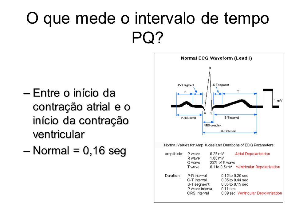 O que mede o intervalo de tempo PQ