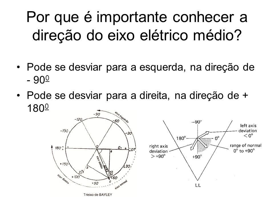 Por que é importante conhecer a direção do eixo elétrico médio