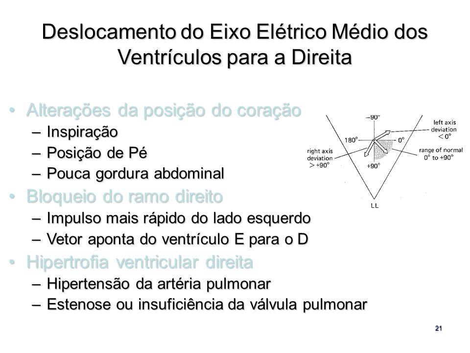 Deslocamento do Eixo Elétrico Médio dos Ventrículos para a Direita