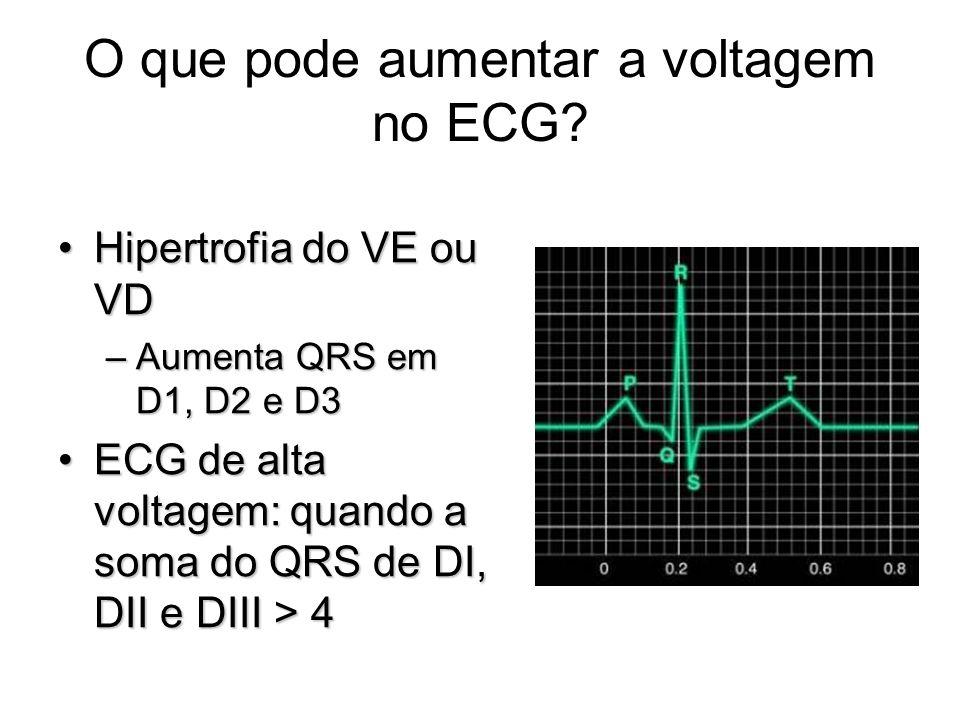 O que pode aumentar a voltagem no ECG