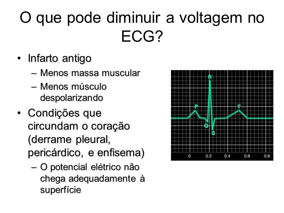 O que pode diminuir a voltagem no ECG