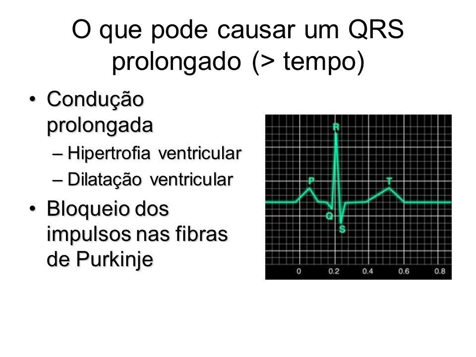 O que pode causar um QRS prolongado (> tempo)