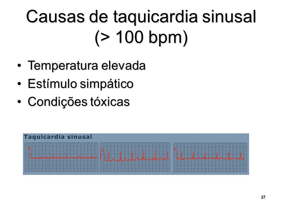 Causas de taquicardia sinusal (> 100 bpm)