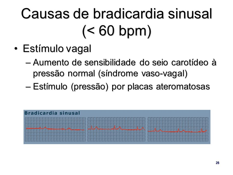 Causas de bradicardia sinusal (< 60 bpm)