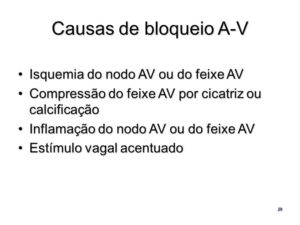 Causas de bloqueio A-V Isquemia do nodo AV ou do feixe AV
