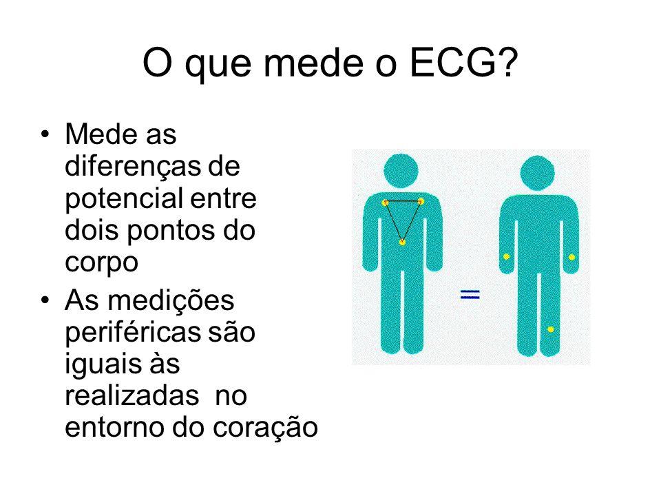 O que mede o ECG Mede as diferenças de potencial entre dois pontos do corpo.